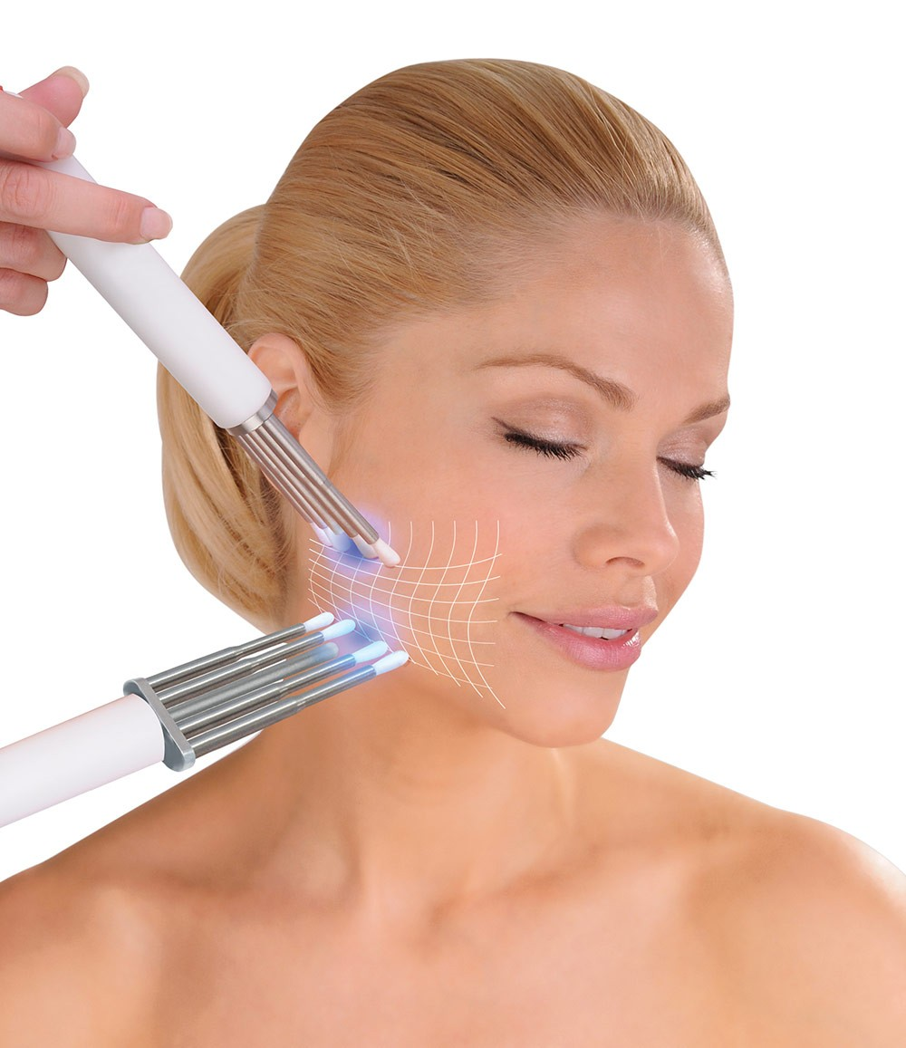 lady having CACI jowl lift