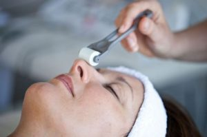 Lady having collagen stimulation therapy
